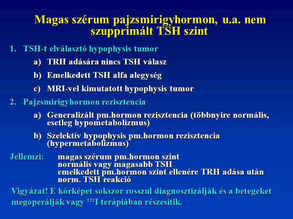 Magas szérum pajzsmirigyhormon, u.a. nem szupprimált TSH szint