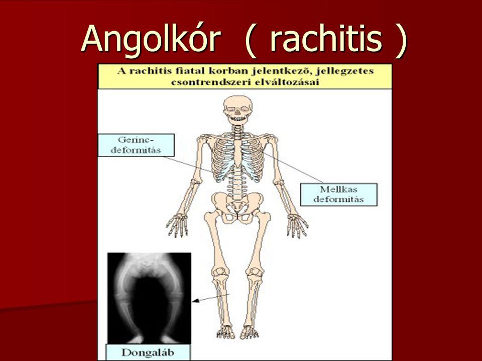 Angolkór ( rachitis )