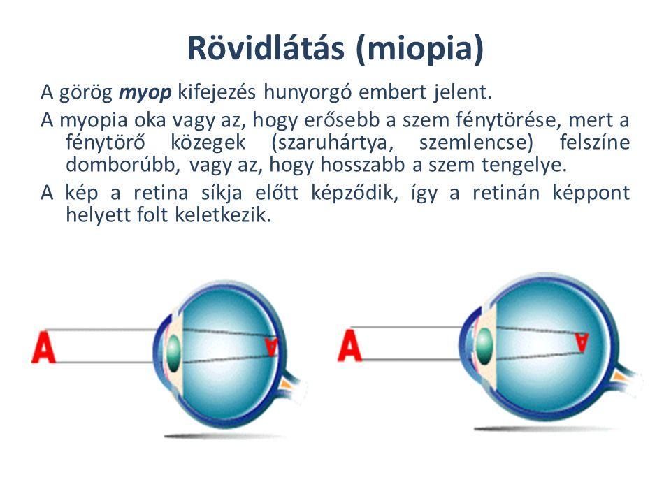 Rövidlátás (miopia)