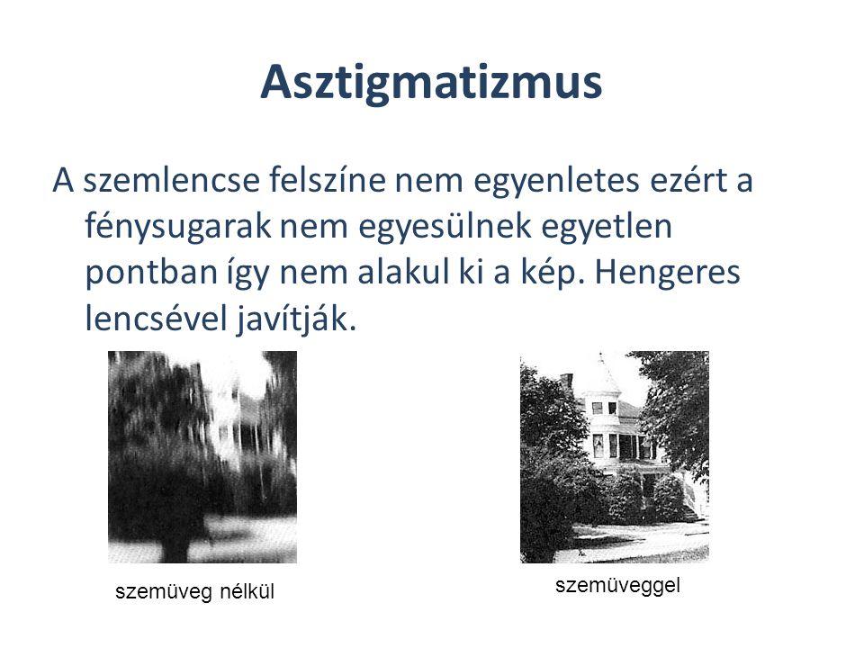 Asztigmatizmus