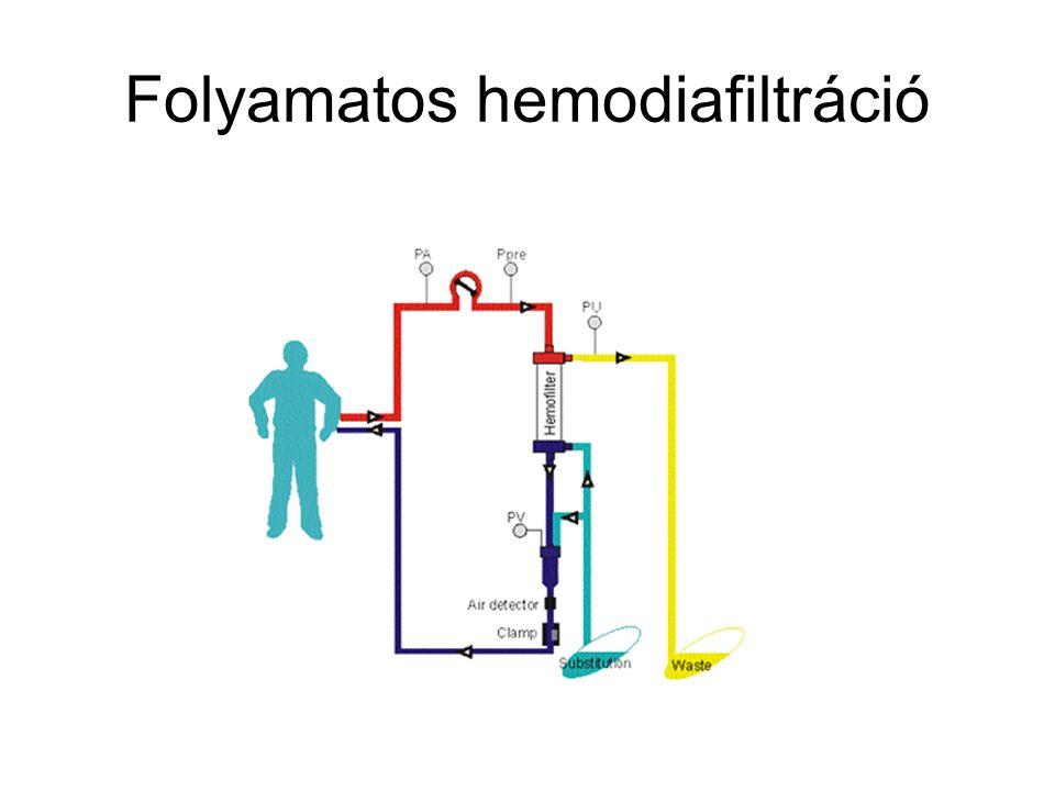 Folyamatos hemodiafiltráció