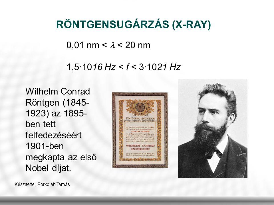 RÖNTGENSUGÁRZÁS (X-RAY)