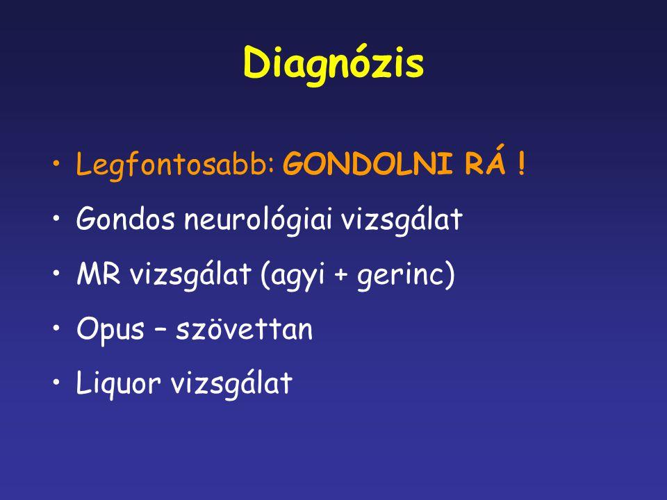 Diagnózis Legfontosabb: GONDOLNI RÁ ! Gondos neurológiai vizsgálat