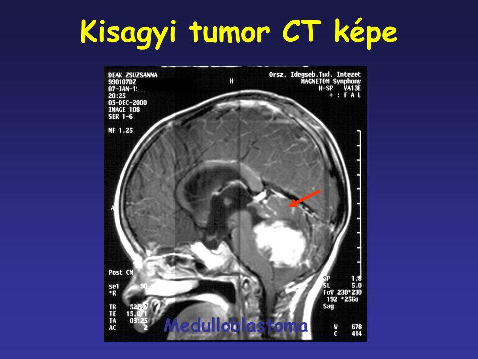 Kisagyi tumor CT képe Medulloblastoma