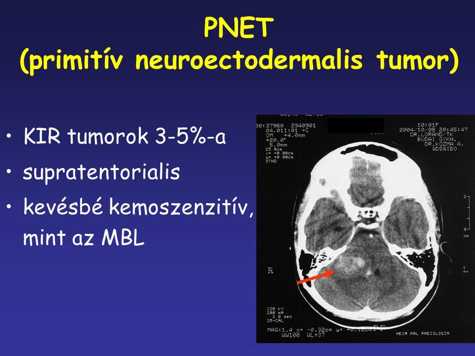 PNET (primitív neuroectodermalis tumor)