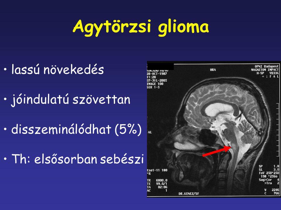 Agytörzsi glioma lassú növekedés jóindulatú szövettan