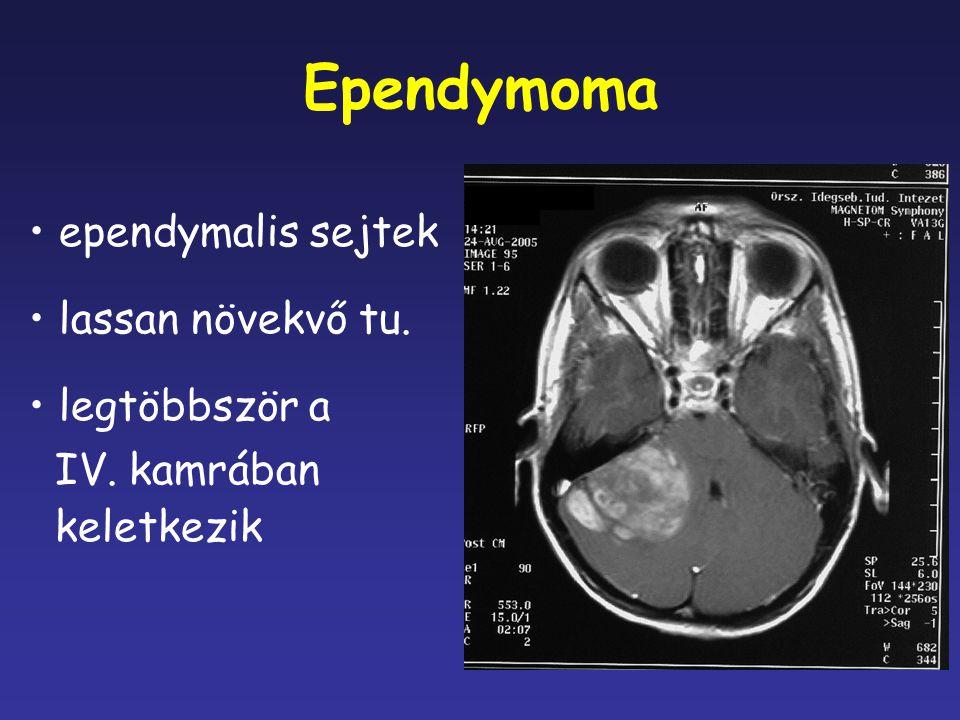 Ependymoma ependymalis sejtek lassan növekvő tu. legtöbbször a