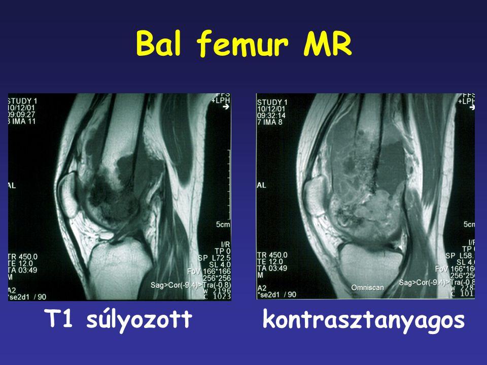 Bal femur MR T1 súlyozott kontrasztanyagos