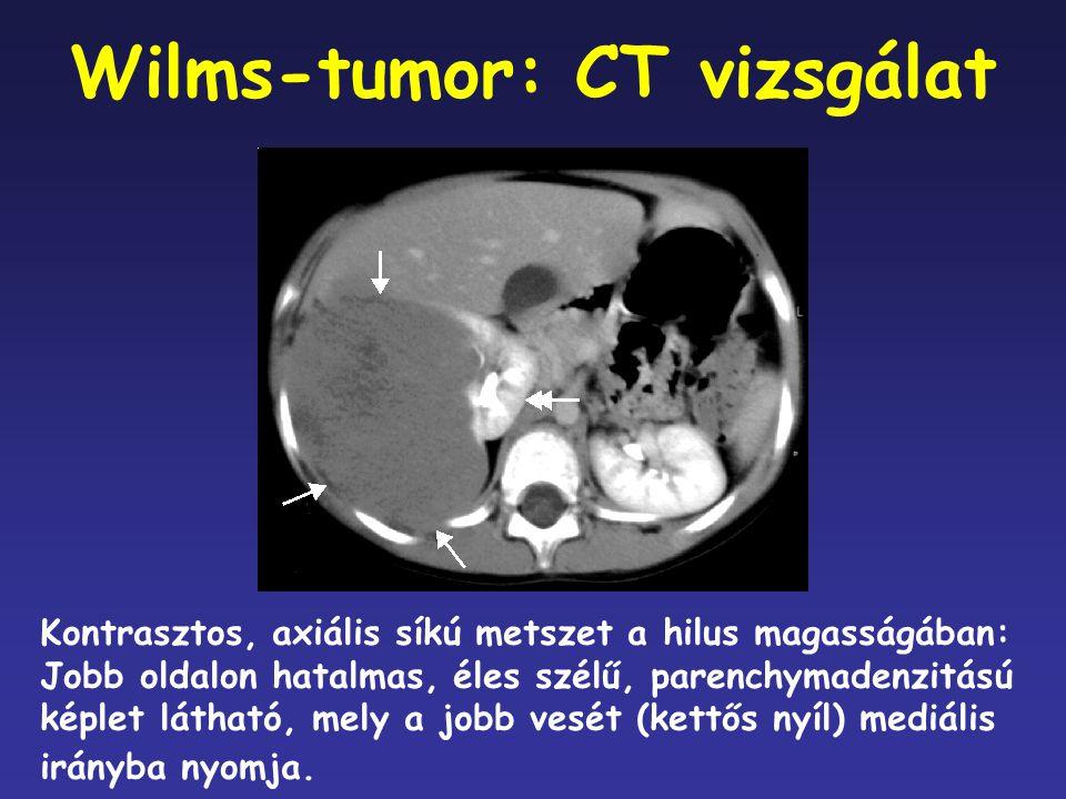 Wilms-tumor: CT vizsgálat