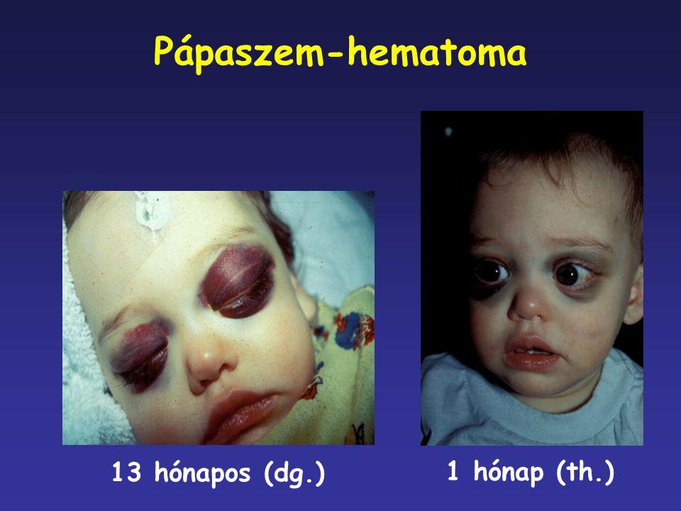 Pápaszem-hematoma 1 hónap (th.) 13 hónapos (dg.)
