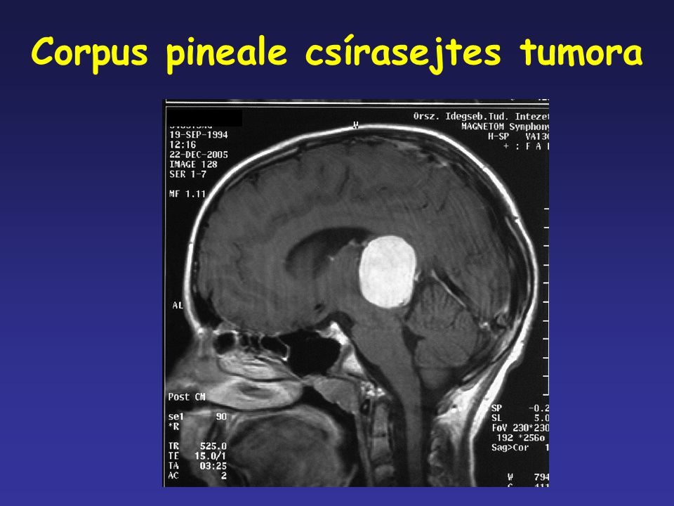 Corpus pineale csírasejtes tumora