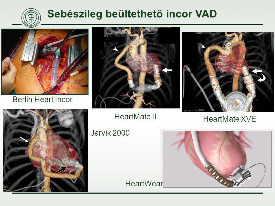 Sebészileg beültethető incor VAD