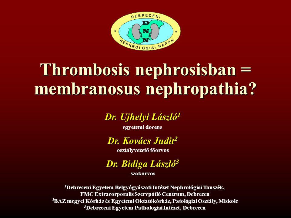 Thrombosis nephrosisban = membranosus nephropathia
