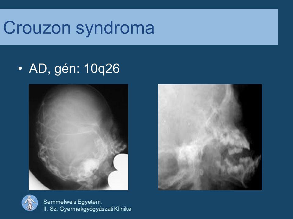 Crouzon syndroma AD, gén: 10q26 Semmelweis Egyetem,