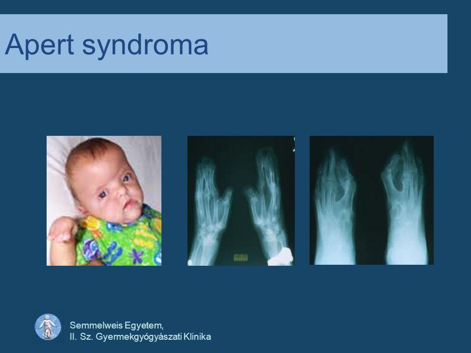 Apert syndroma Semmelweis Egyetem, II. Sz. Gyermekgyógyászati Klinika