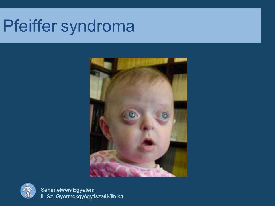 Pfeiffer syndroma Semmelweis Egyetem,