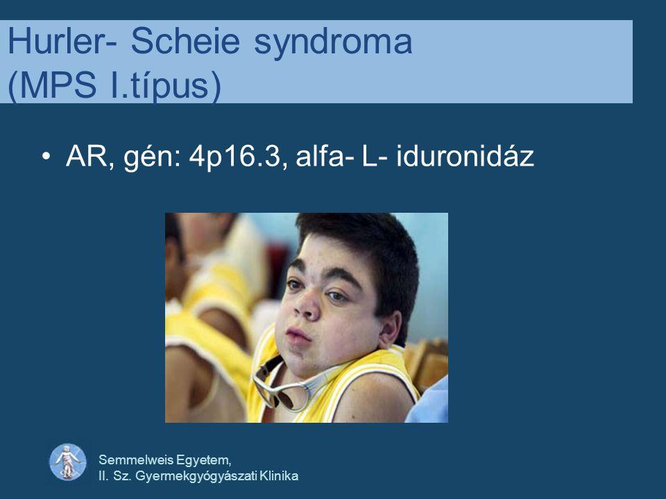 Hurler- Scheie syndroma (MPS I.típus)