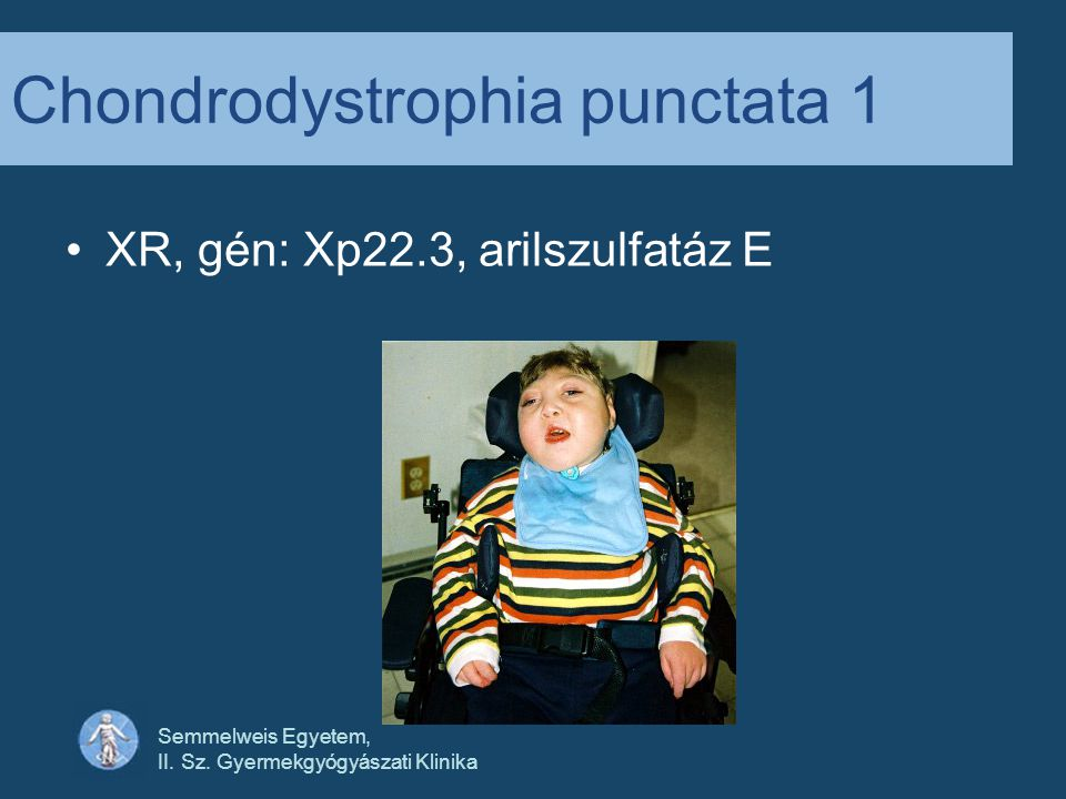 Chondrodystrophia punctata 1