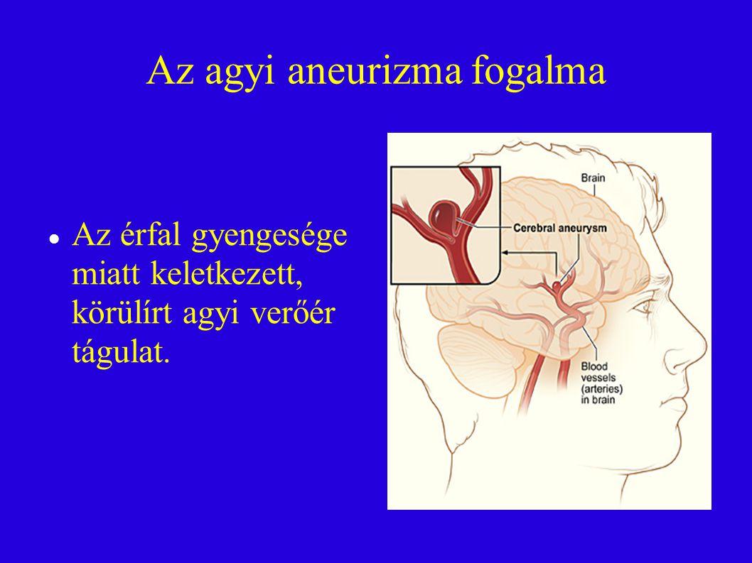 Az agyi aneurizma fogalma