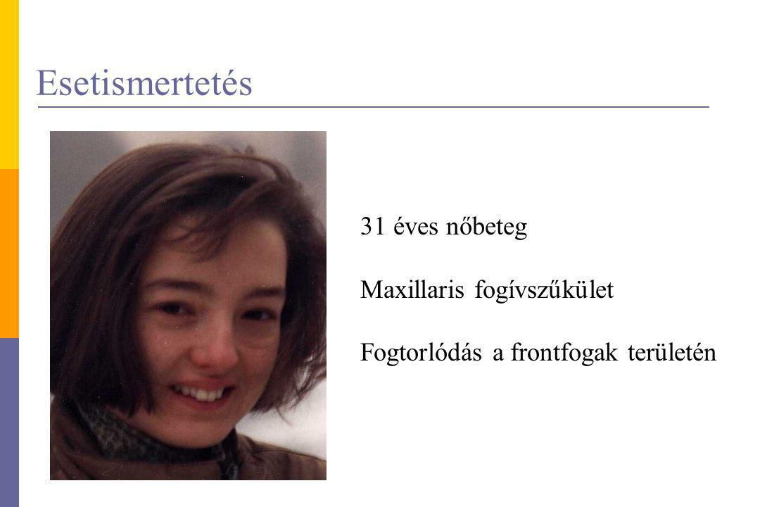 Esetismertetés 31 éves nőbeteg Maxillaris fogívszűkület
