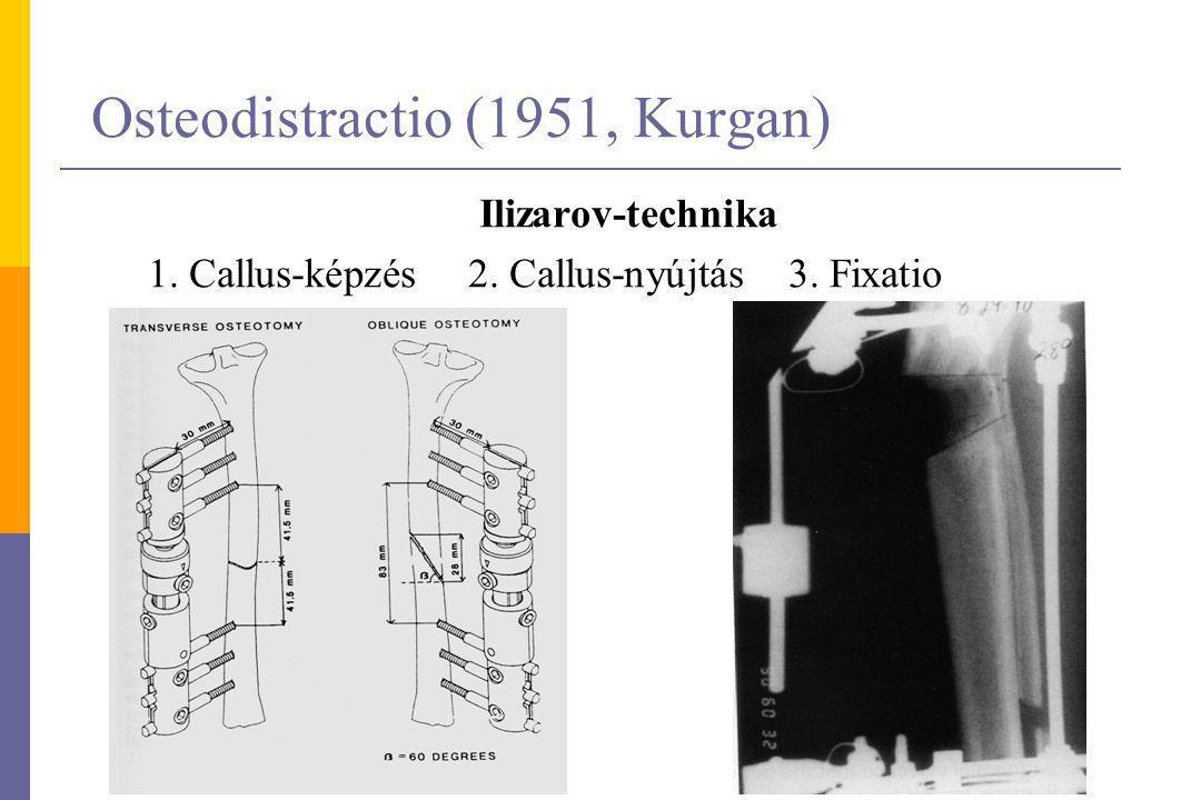 Osteodistractio (1951, Kurgan)