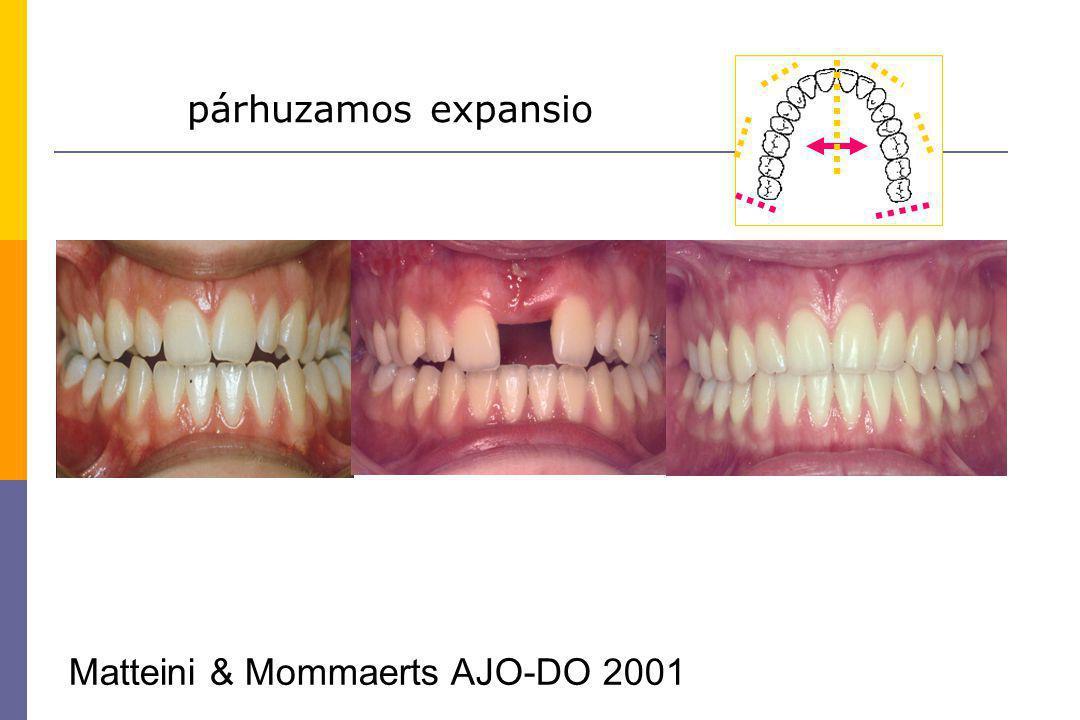 párhuzamos expansio Matteini & Mommaerts AJO-DO 2001