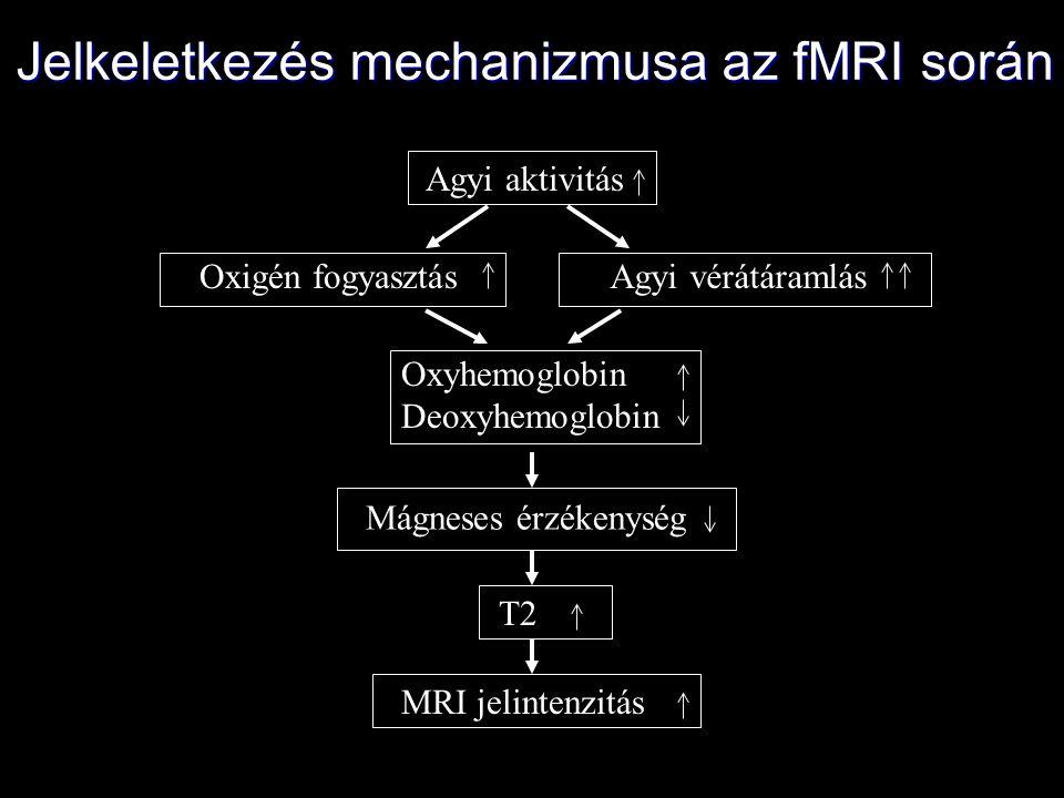 Jelkeletkezés mechanizmusa az fMRI során