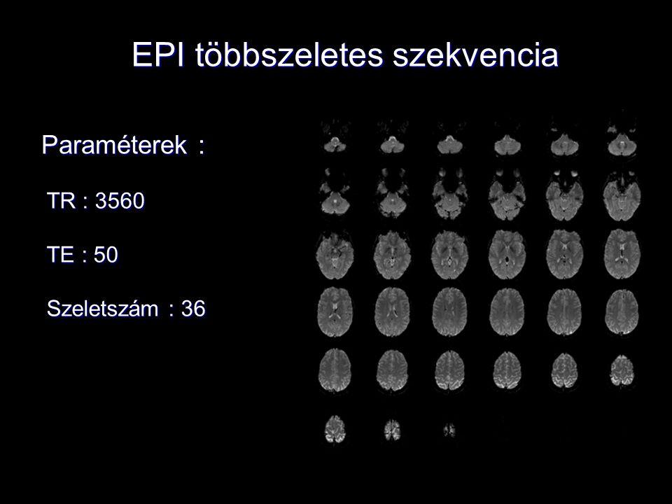 EPI többszeletes szekvencia