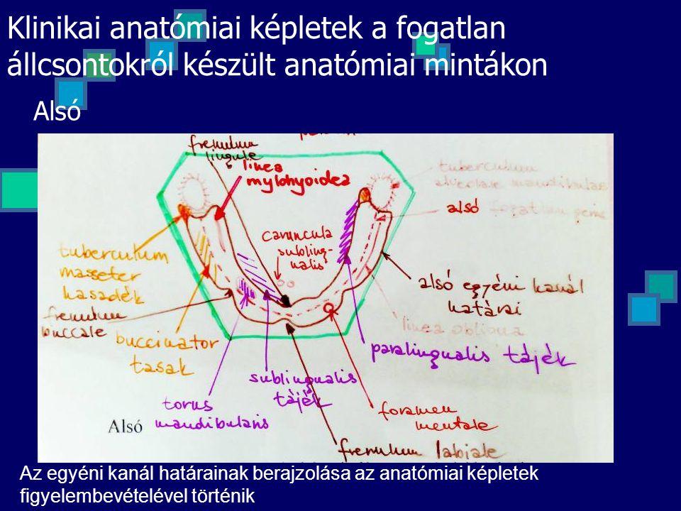 Klinikai anatómiai képletek a fogatlan állcsontokról készült anatómiai mintákon