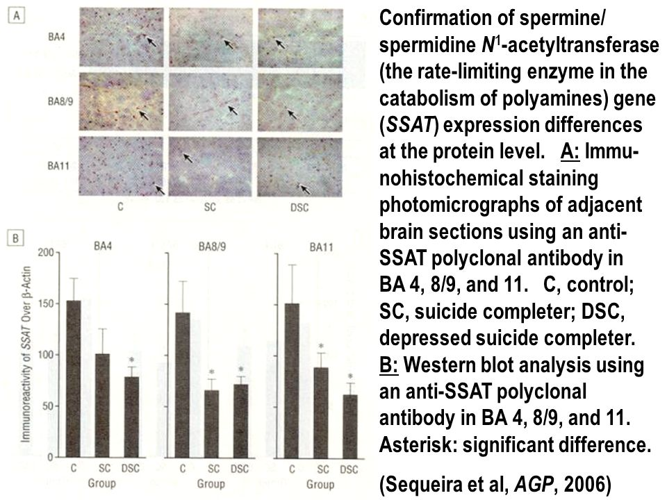 Confirmation of spermine/ spermidine N1-acetyltransferase (the rate-limiting enzyme in the catabolism of polyamines) gene (SSAT) expression differences at the protein level. A: Immu-nohistochemical staining photomicrographs of adjacent brain sections using an anti-SSAT polyclonal antibody in BA 4, 8/9, and 11. C, control; SC, suicide completer; DSC, depressed suicide completer. B: Western blot analysis using an anti-SSAT polyclonal antibody in BA 4, 8/9, and 11. Asterisk: significant difference.