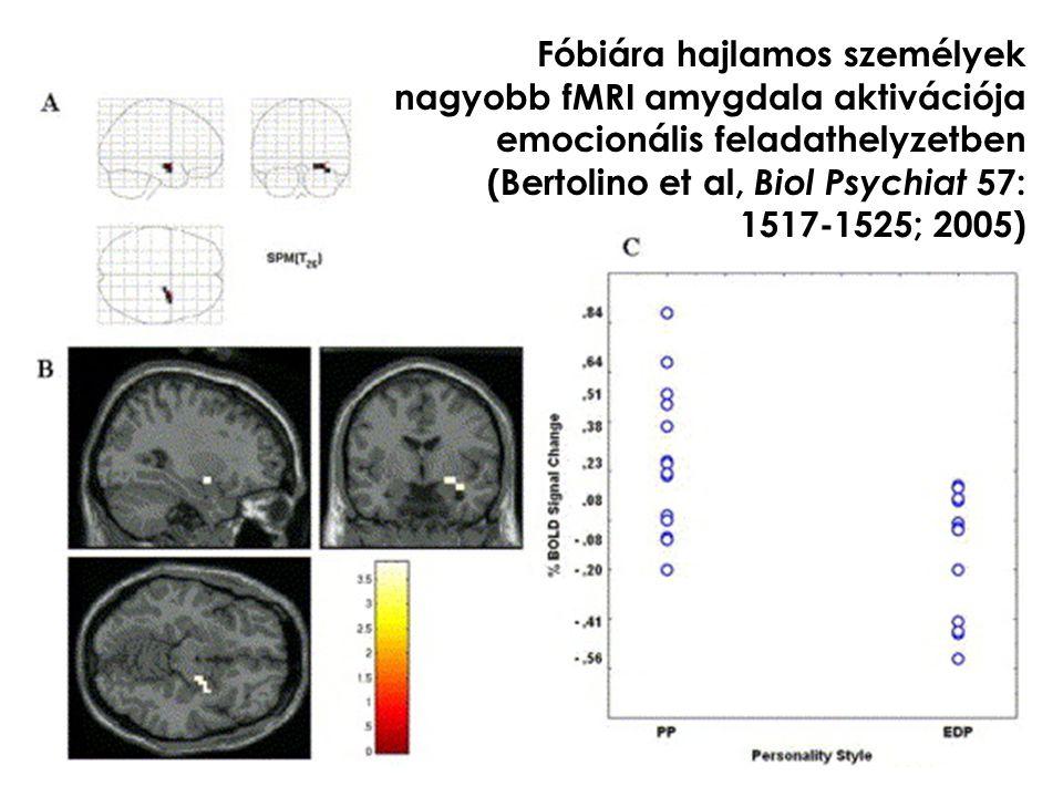 Fóbiára hajlamos személyek nagyobb fMRI amygdala aktivációja emocionális feladathelyzetben (Bertolino et al, Biol Psychiat 57: 1517-1525; 2005)