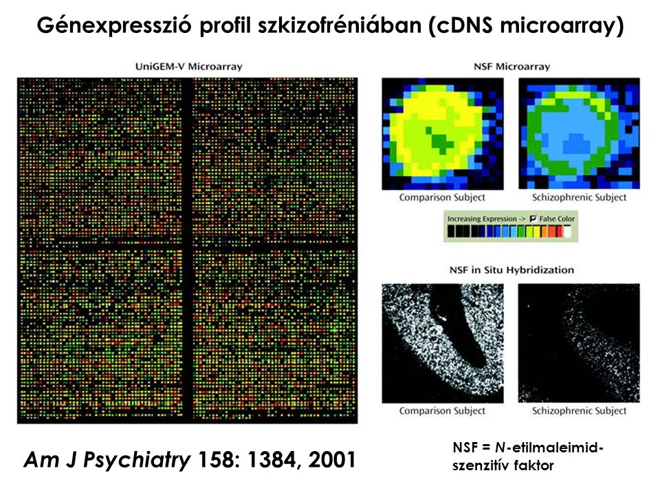 Génexpresszió profil szkizofréniában (cDNS microarray)