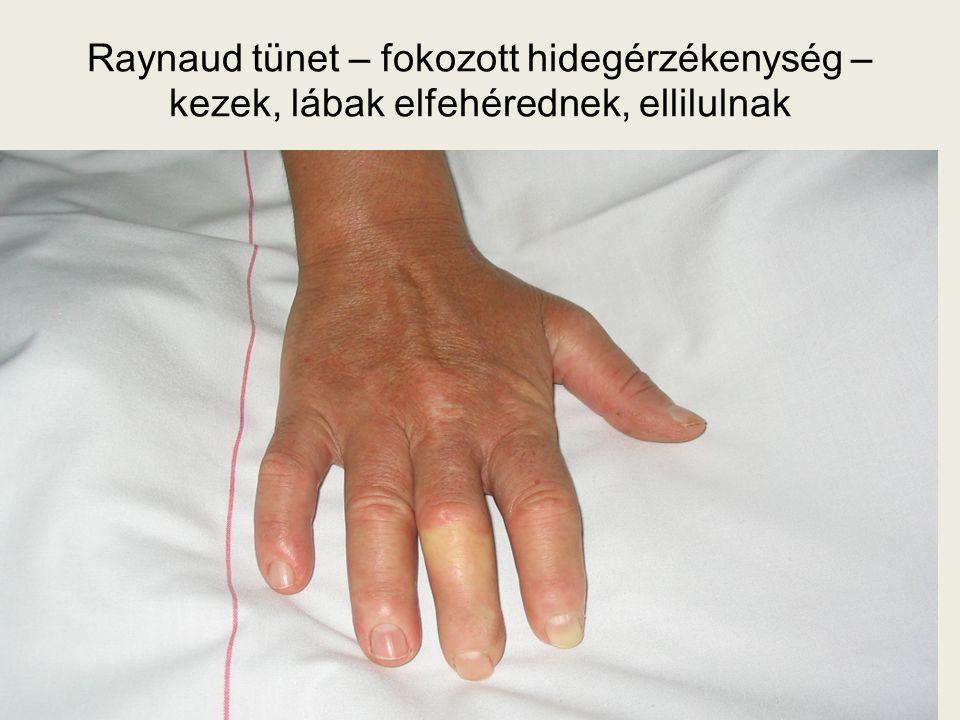 Raynaud tünet – fokozott hidegérzékenység – kezek, lábak elfehérednek, ellilulnak
