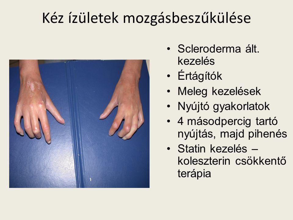 Kéz ízületek mozgásbeszűkülése