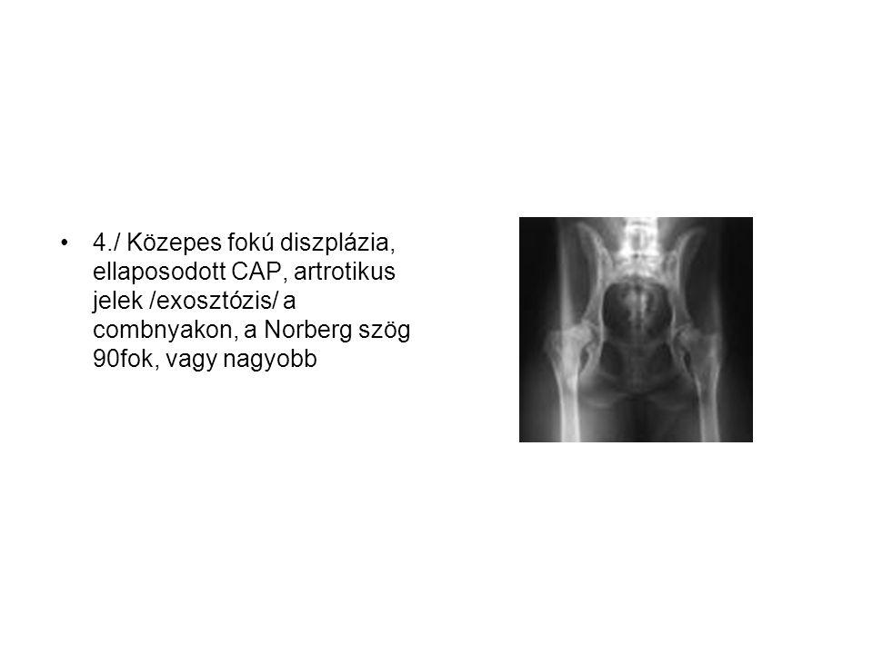4./ Közepes fokú diszplázia, ellaposodott CAP, artrotikus jelek /exosztózis/ a combnyakon, a Norberg szög 90fok, vagy nagyobb