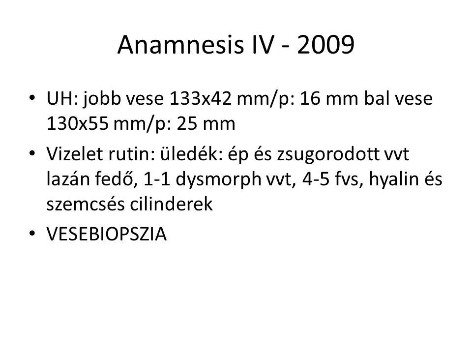Anamnesis IV - 2009 UH: jobb vese 133x42 mm/p: 16 mm bal vese 130x55 mm/p: 25 mm.