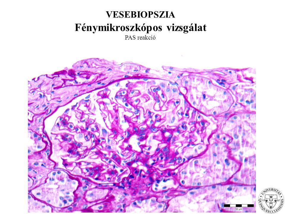 VESEBIOPSZIA Fénymikroszkópos vizsgálat PAS reakció