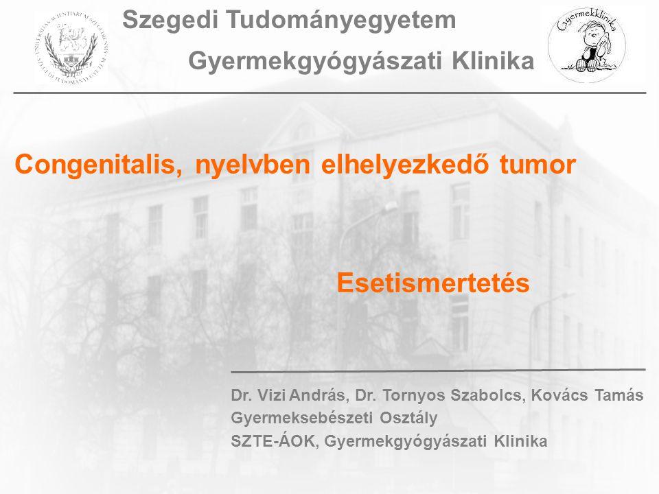 Congenitalis, nyelvben elhelyezkedő tumor