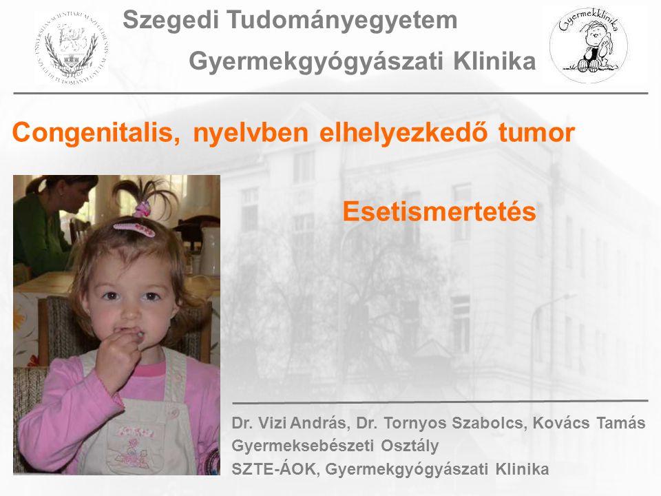 Congenitalis, nyelvben elhelyezkedő tumor Esetismertetés