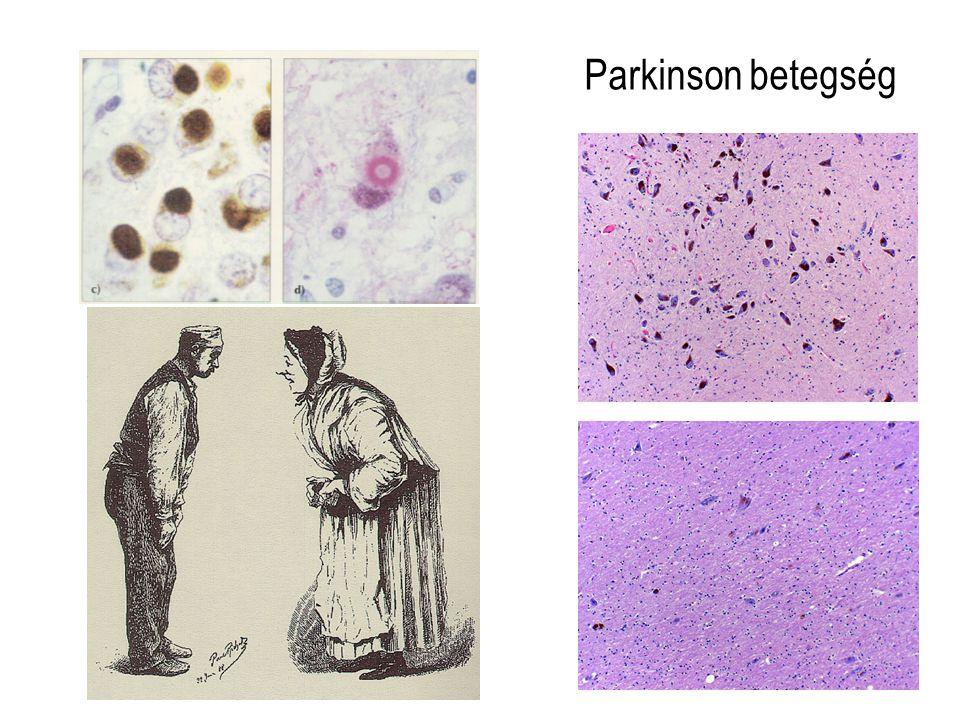 Parkinson betegség