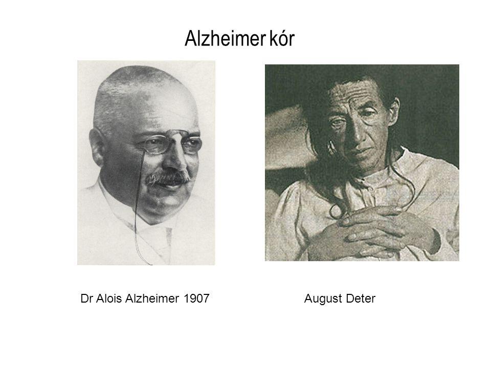 Alzheimer kór Dr Alois Alzheimer 1907 August Deter