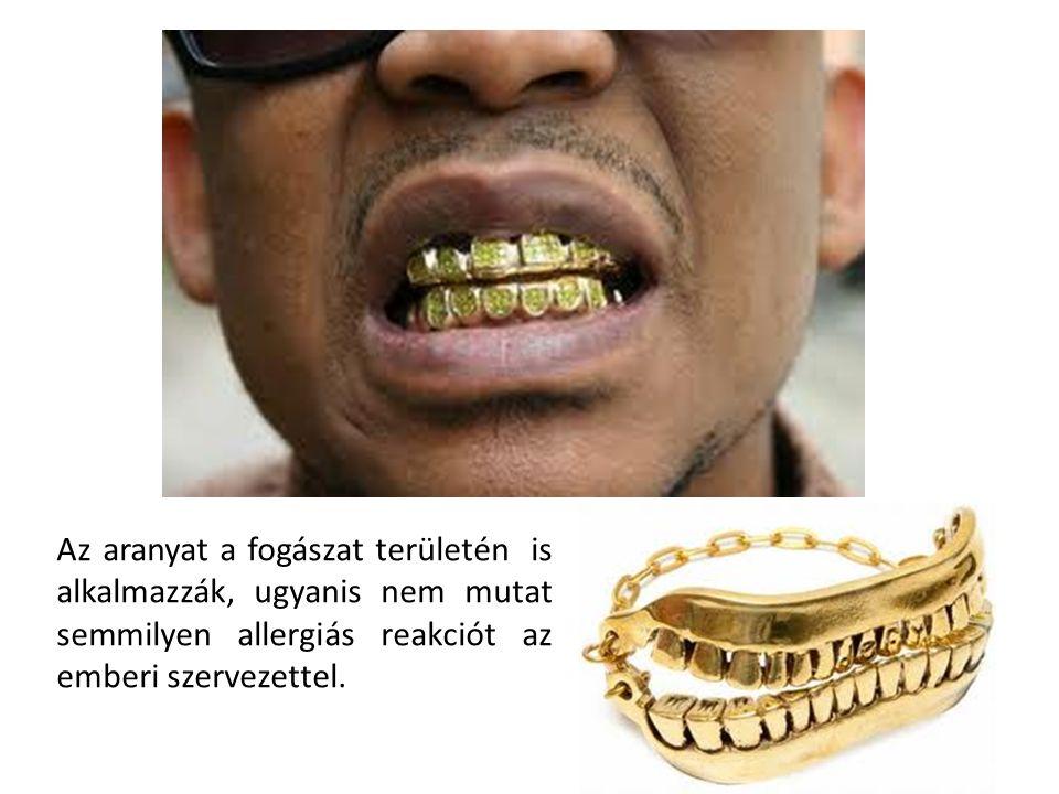 Az aranyat a fogászat területén is alkalmazzák, ugyanis nem mutat semmilyen allergiás reakciót az emberi szervezettel.