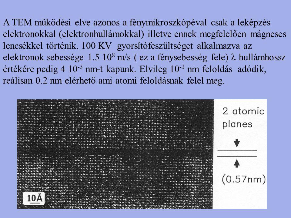 A TEM működési elve azonos a fénymikroszkópéval csak a leképzés elektronokkal (elektronhullámokkal) illetve ennek megfelelően mágneses lencsékkel történik.