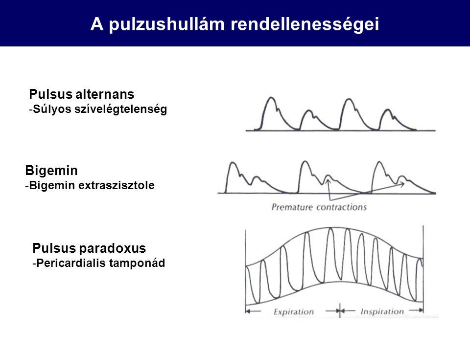 A pulzushullám rendellenességei