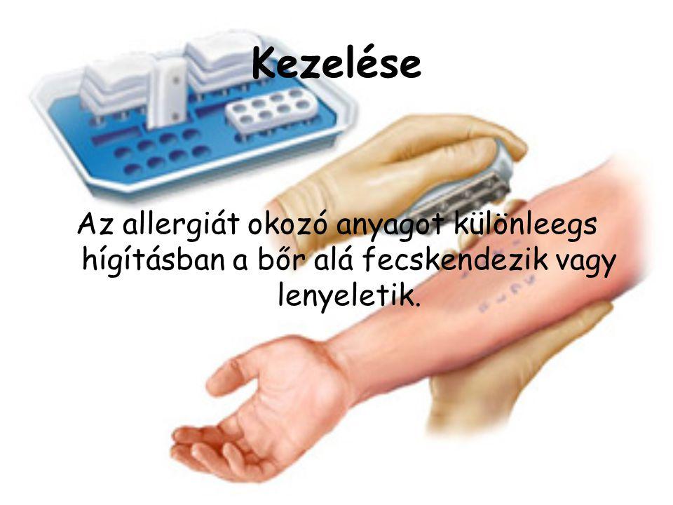Kezelése Az allergiát okozó anyagot különleegs hígításban a bőr alá fecskendezik vagy lenyeletik.