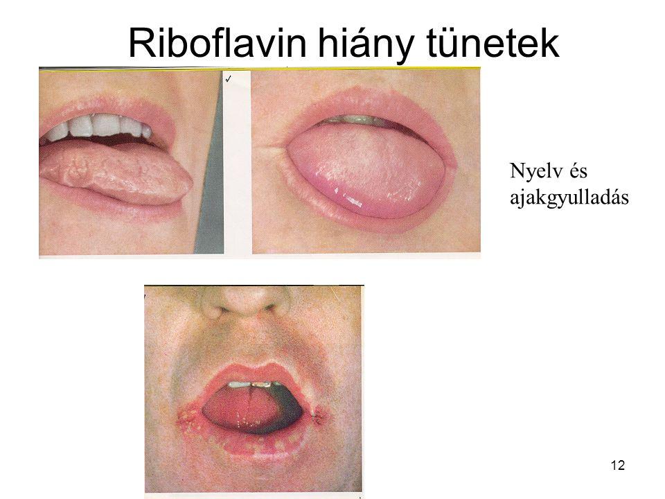 Riboflavin hiány tünetek