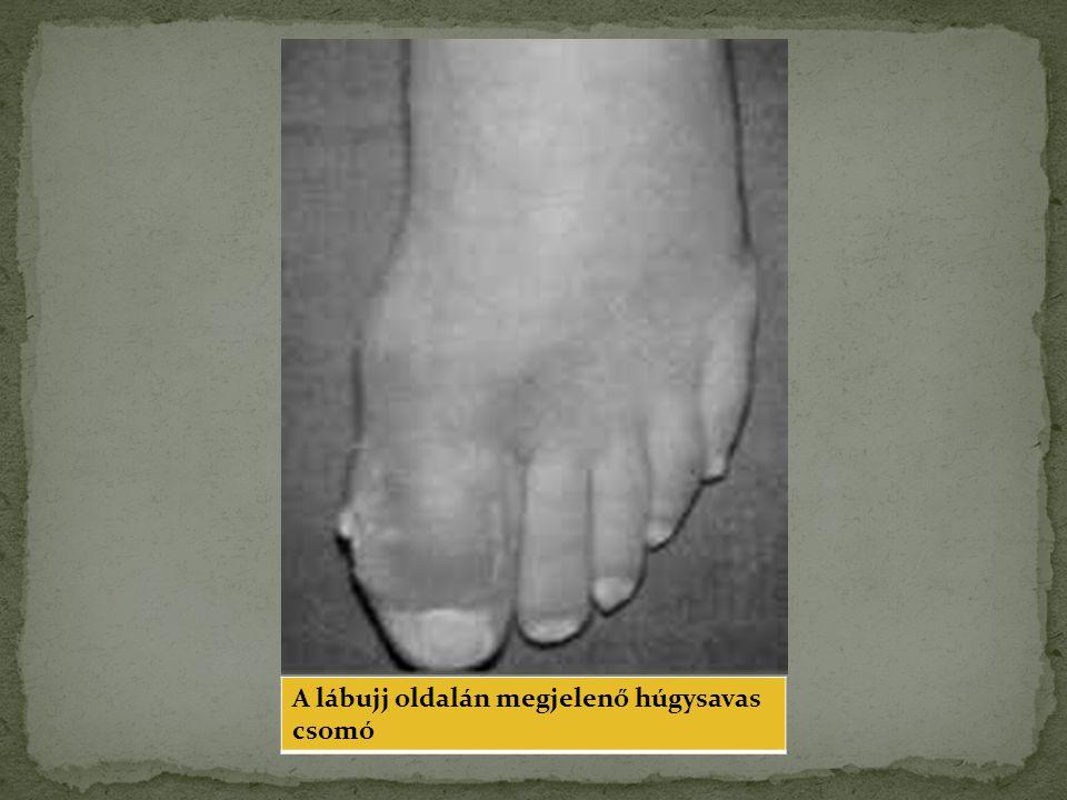 A lábujj oldalán megjelenő húgysavas csomó