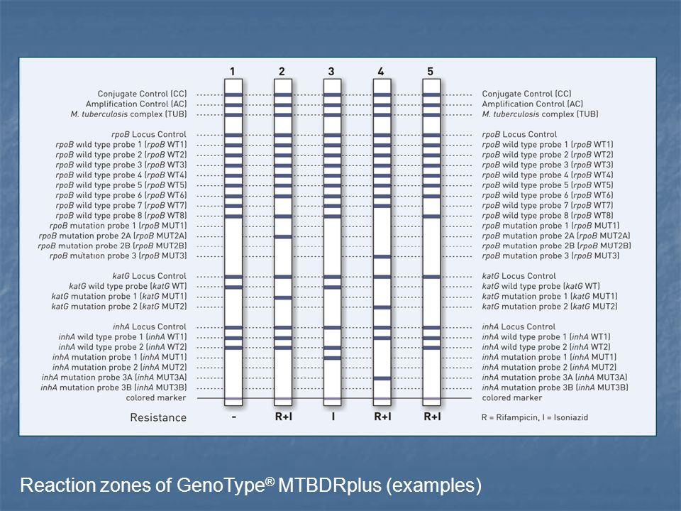 Reaction zones of GenoType® MTBDRplus (examples)