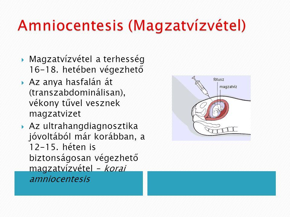 Amniocentesis (Magzatvízvétel)