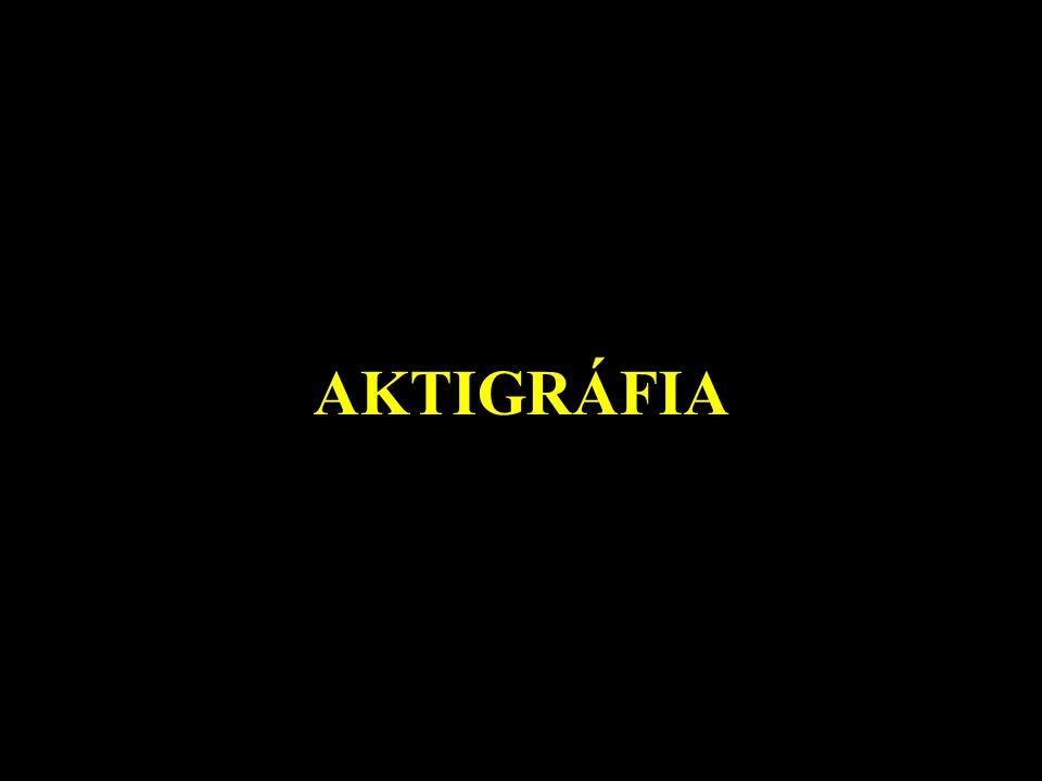 AKTIGRÁFIA
